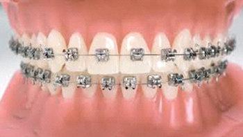Tratamiento de Ortodoncia en la Clinica dental Carvajal de Jaen