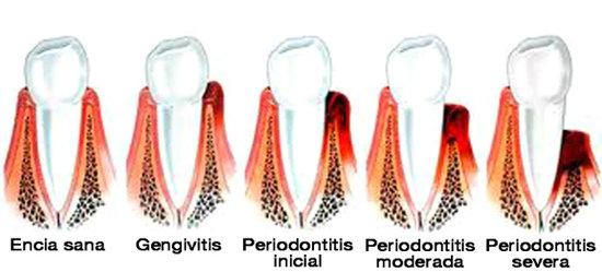 Tratamientos de periodoncia en Clinica dental Carvajal de Jaen